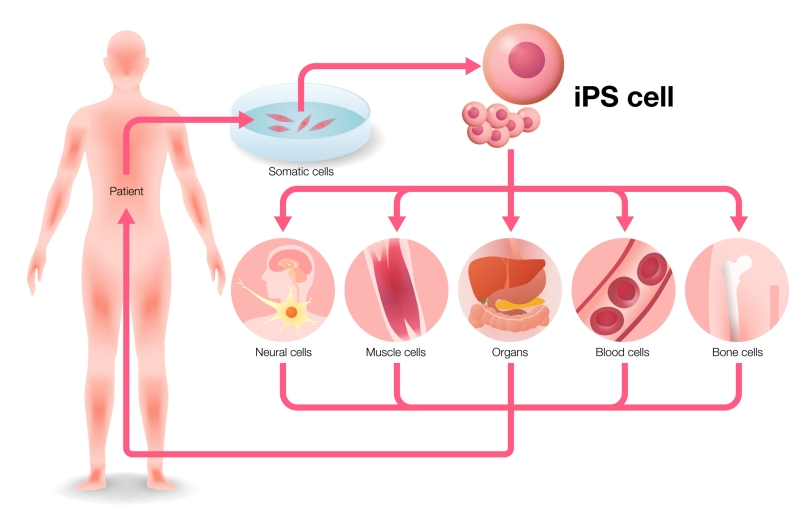 iPS cell