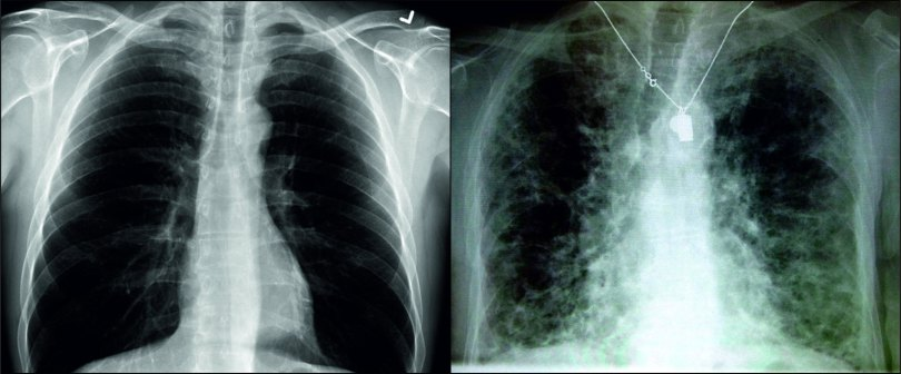 lung comparison