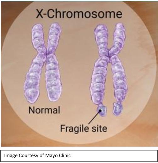 FXS_Chromsome